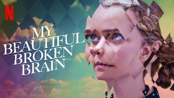 My Beautiful Broken Brain (2016)